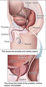 Prostate cancer - Susan\'s Place Transgender Resources